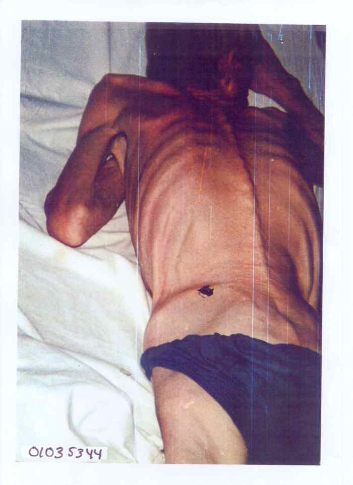 Badly beaten and emaciated Bosniak (Bosnian Muslim) man from the village of Hrnici, later died, in the Trnopolje concentration camp (Bosnian Genocide)