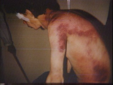 Bosnian Genocide (1992), Covert photograph of beaten inmate at Trnopolje concentration camp. Penny Marshall, ITN, 6 August 1992.