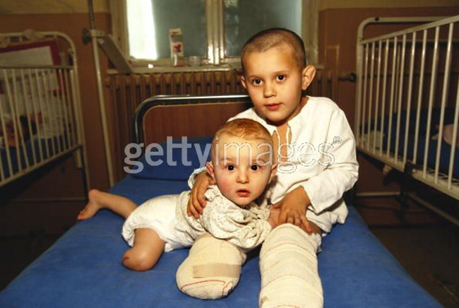 Amputee Bosnian Muslim (Bosniak) children, wounded by Serbs during the siege of Sarajevo, photographed in a Sarajevo hospital, February 1992.