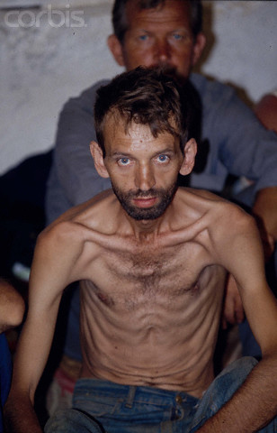 Bosnian Genocide, 1992. Manjaca concentration camp near Prijedor, north-west Bosnia. Photographer: Patrick Robert