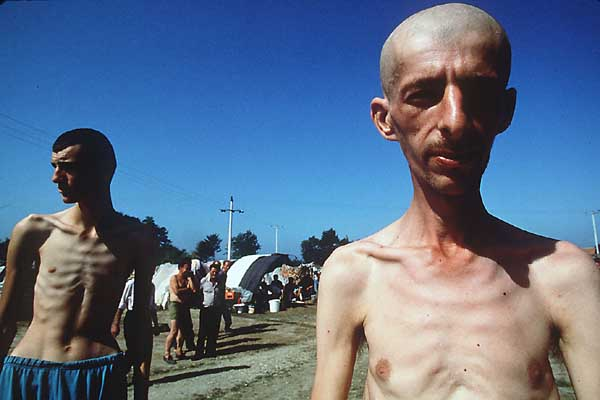 Bosnian Genocide (1992): Bosnian Muslim (Bosniak) prisoners in Trnopolje concentration camp near Prijedor.