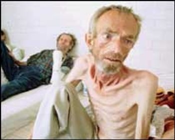 Bosnian Genocide (1992), Bosnian Muslim (Bosniak) Prisoners in Trnopolje concentration camp