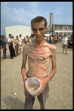 Bosnian Genocide (1992), Bosnian Muslim (Bosniak) Prisoner in Trnopolje concentration camp near Prijedor.