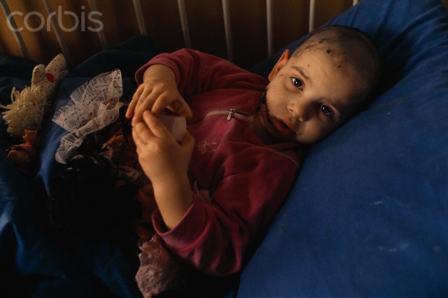 A young Bosniak (Bosnian Muslim) child lies in bed and plays with toys while recovering from face wounds received during the siege of Sarajevo, 2 February 1993.