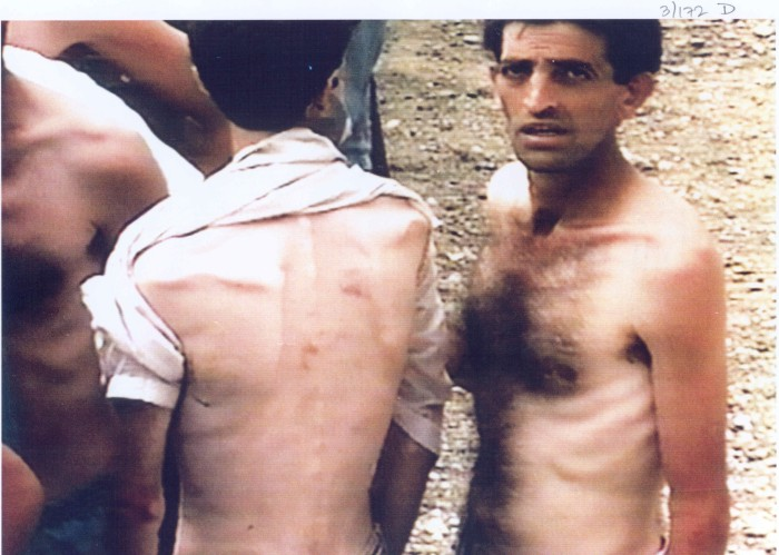 Tortured, beaten, and emaciated Bosniak (Bosnian Muslim) men in the Trnopolje concentration camp near Prijedor, north-west Bosnia, during the Bosnian Genocide.