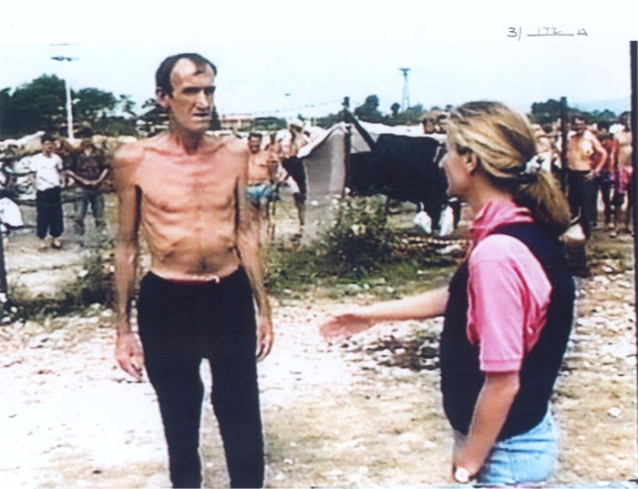 BBC TV crew speaks with emaciated Bosniak (Bosnian Muslim) man in the Trnopolje concentration camp. Serb authorities allowed TV crew to enter the camp after international pressure mounted. Badly emaciated prisoners were removed from the camp, but Dr. Idriz Merdzanic managed to smuggle some photos of brutal beatings and abuse in the camp, which we will show beginning from the next photo.