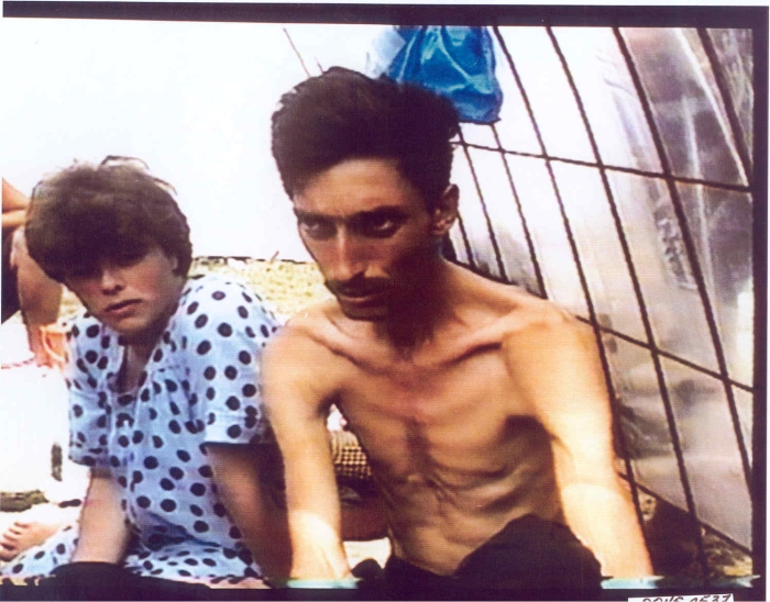 Emaciated Bosniak (Bosnian Muslim) man in the Trnopolje concentration camp near Prijedor, north-west Bosnia, during the Bosnian Genocide.