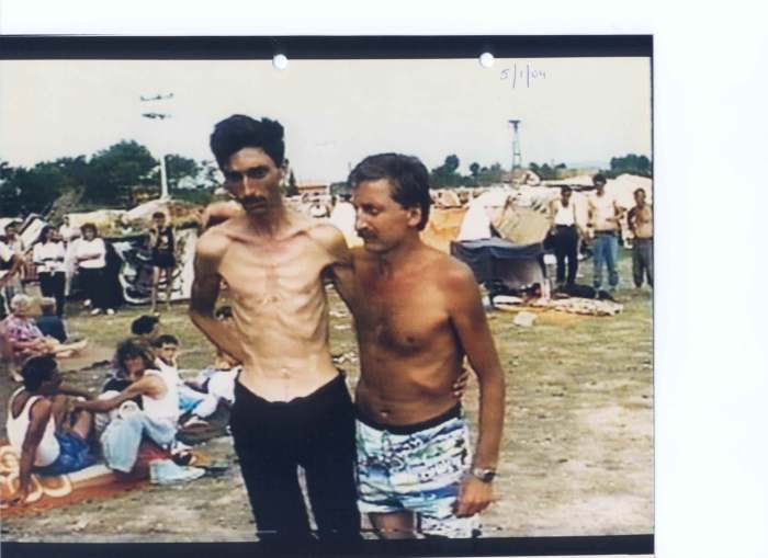 Emaciated and visibly weak Bosniak (Bosnian Muslim) man in the Trnopolje concentration camp in August of 1992 at the start of the Bosnian Genocide.